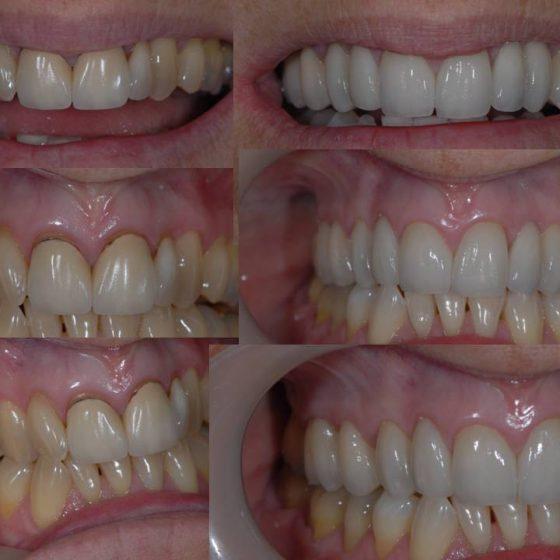 Blythe Road dental work
