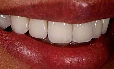 Close up of white teeth