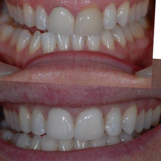 Blythe Road Dental example 2
