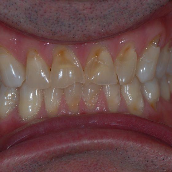 Blythe Road Dental example