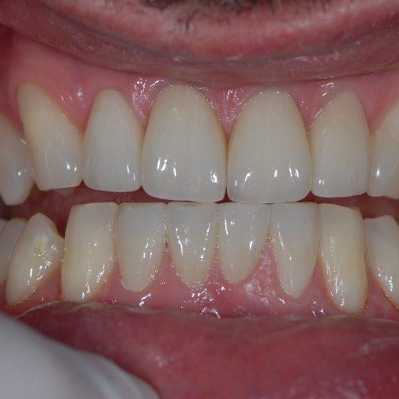 Blythe Road Dental dentistry work