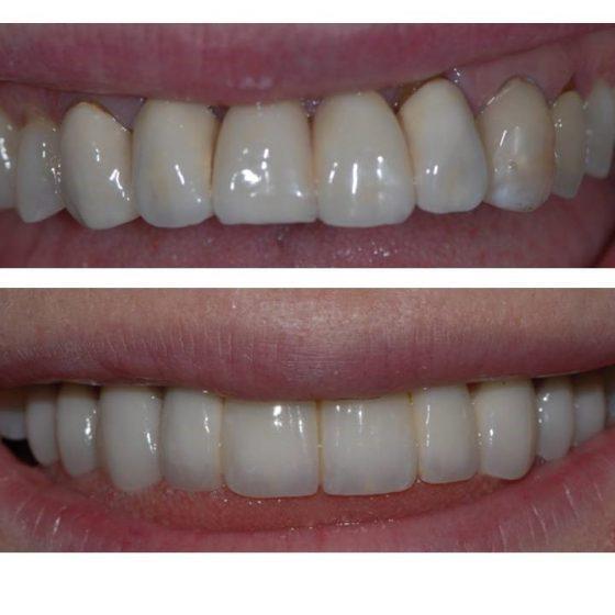 Blythe Road Dental dentistry example