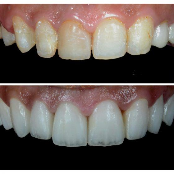Blythe Road Dental before and after