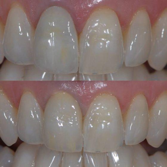 Blythe Road Dental x 2