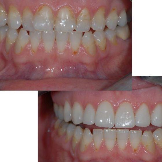 Blythe Road Dental Practice x 2