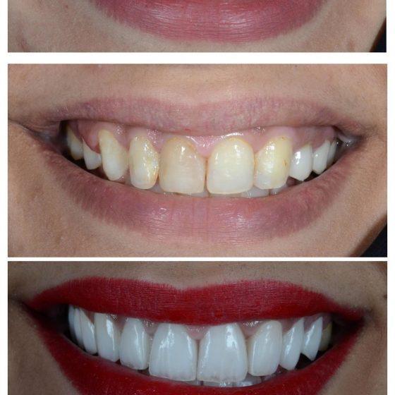 Braces at Blythe Road Dental