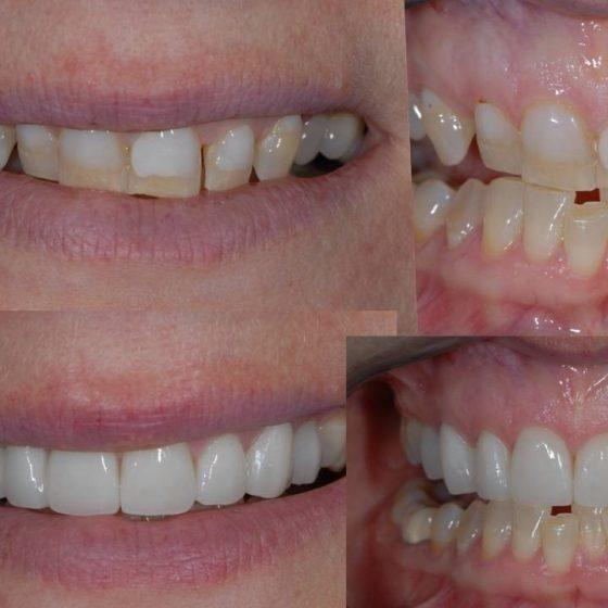 Dentistry work before and after
