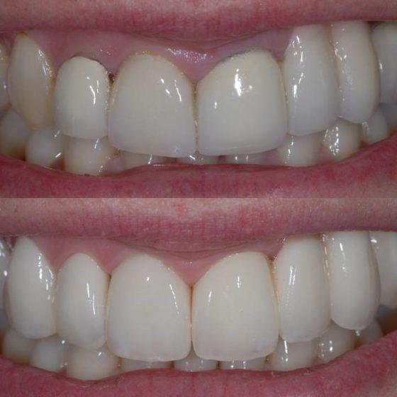 Blythe Road Dental teeth close up