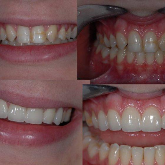 Blythe Road Dental work x 4