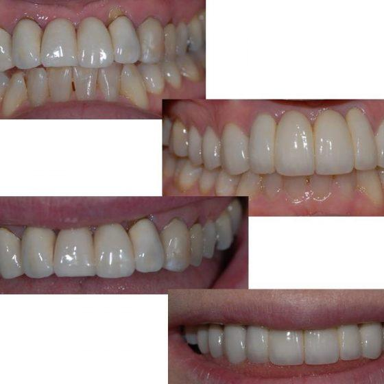 Dental work x 4 Blythe Road Dental