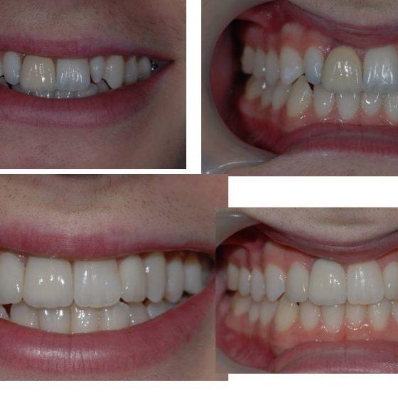 Dental work x 5 Blythe Road Dental