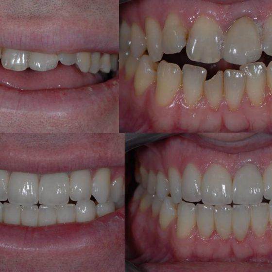 Before and after Blythe Road Dental 4