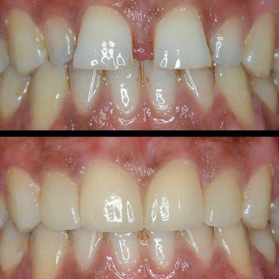Blythe Road Dental braces before and after