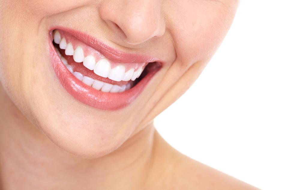 Lady smiling with white teeth