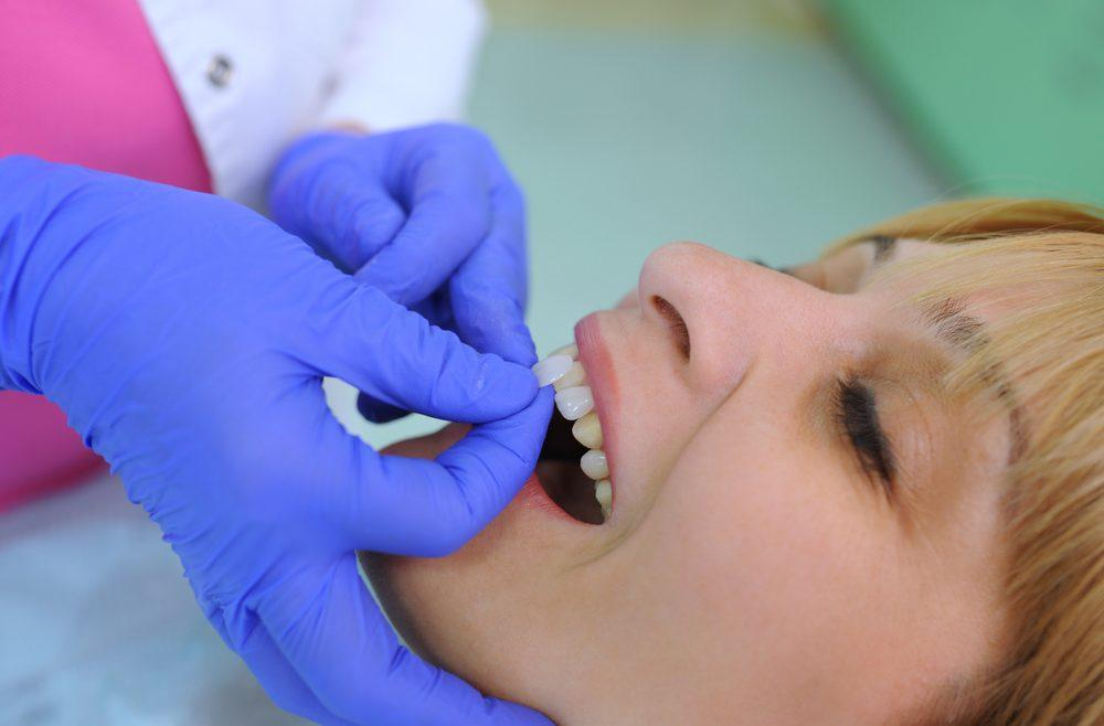 dental veneers hammersmith