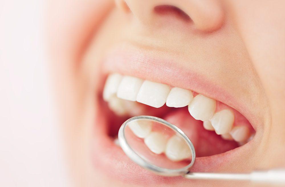 Woman recieving dental check